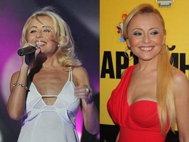 Топ-12 российских звезд до и после пластики – фото знаменитости