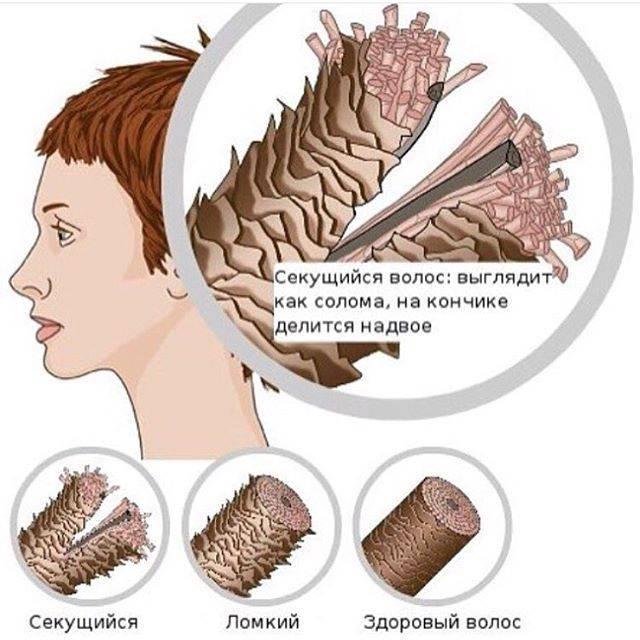 Беспокоят сухие, секущиеся волосы? салонные и домашние процедуры помогут избавиться от поврежденных локонов!