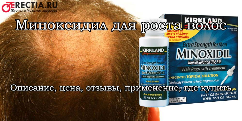 Миноксидил: инструкция по применению, противопоказания, побочные действия