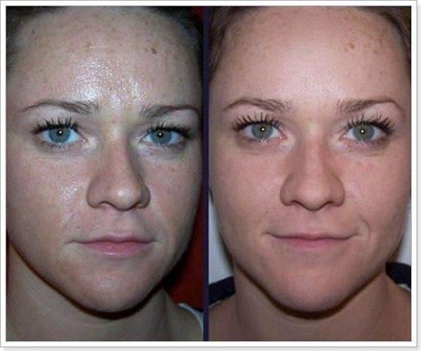 Ультразвуковой пилинг лица * отзывы на уз пилинг с фото до и после дома.