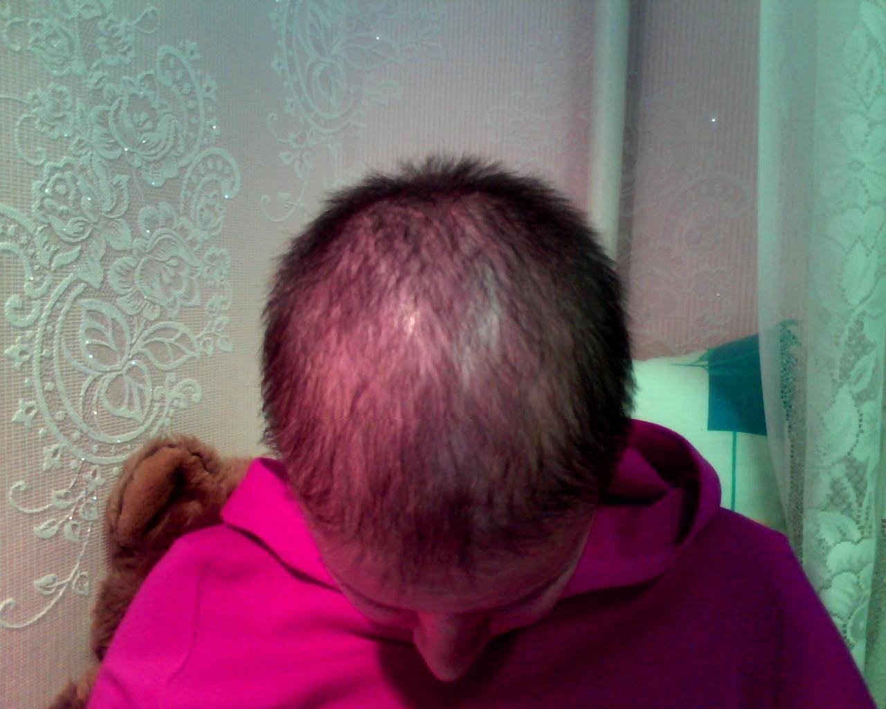 Как начинают расти волосы после химиотерапии