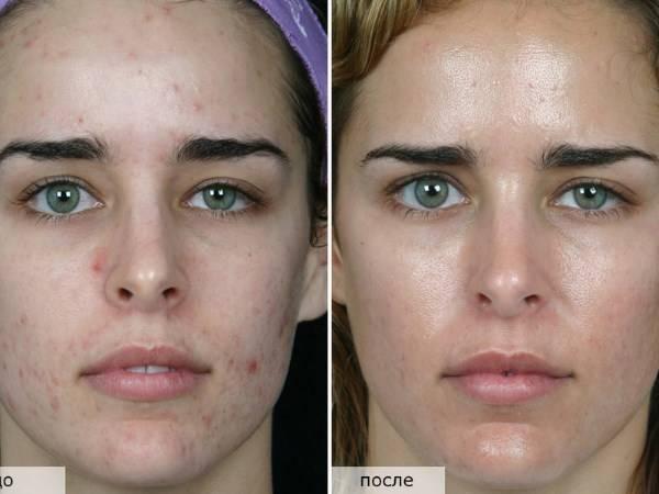 Ультразвуковой пилинг лица — отзывы. лицо после ультразвукового пилинга — фото до и после