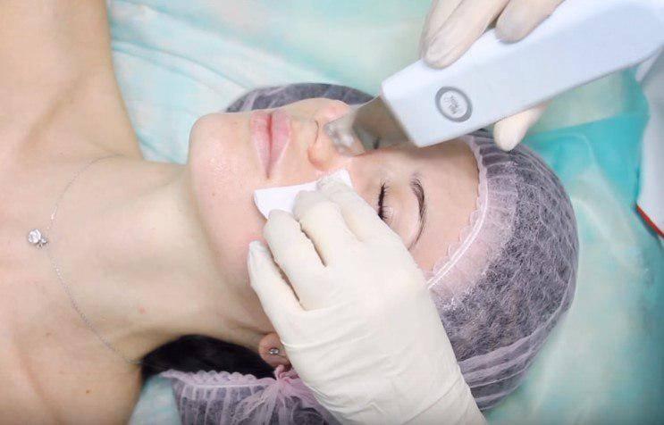 Ультразвуковая чистка лица (27 фото): что это такое, как делать ультразвуком, использование уз в домашних условиях, отзывы