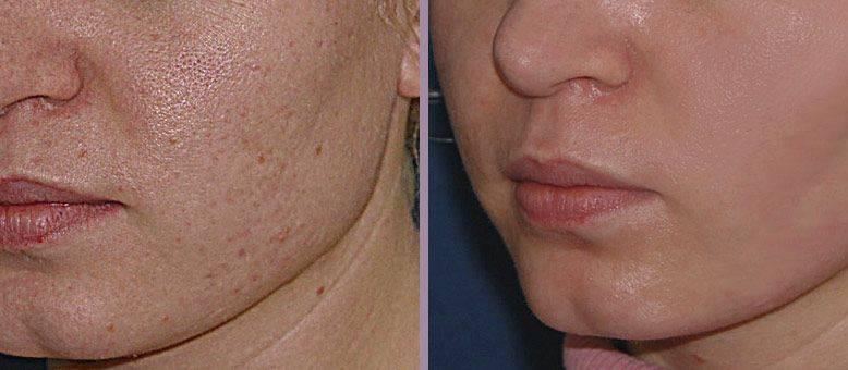 Ультразвуковой пилинг — деликатное очищение и оздоровление кожи