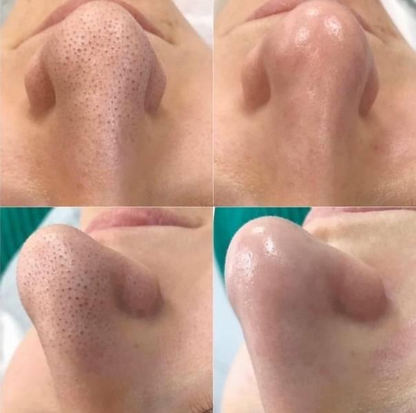 Чистка лица в салоне: какие процедуры приведут лицо в порядок