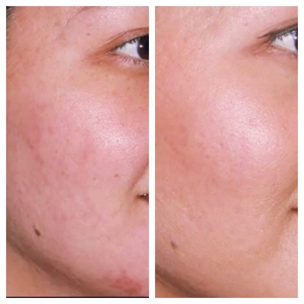 Ультразвуковой пилинг лица: фото до и после, что это такое, противопоказания, отзывы и видео