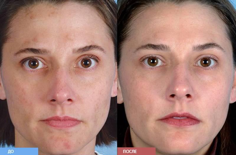 Ультразвуковой пилинг лица