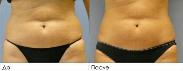 Липолитики и криолиполиз для похудения
