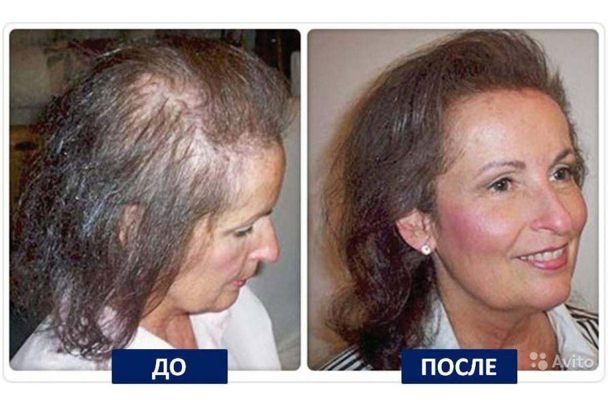 Эффективные методики восстановления волос после химиотерапии