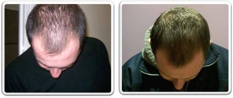 Как восстановить волосы мужчине. облысение - почему выпадают волосы у мужчин